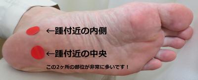 踵の痛み2写真.png