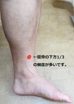 シンスプリント脛骨無題.pngのサムネイル画像